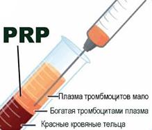 PRP-терапия в косметологии Медитэкс в Петропавловске-Камчатском