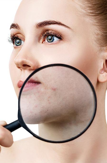 Чистка лица при акне и проблемной коже в косметологии Медитэкс в Петропавловске-Камчатском