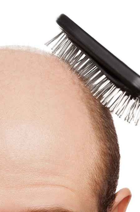 Диагностика и лечение заболевания волос в косметологии Медитэкс на Камчатке