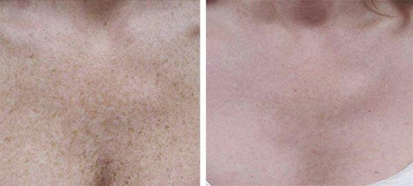 Фотоомоложение лица и тела, удаление пигментаций в косметологии Медитэкс в Петропавловске-Камчатском