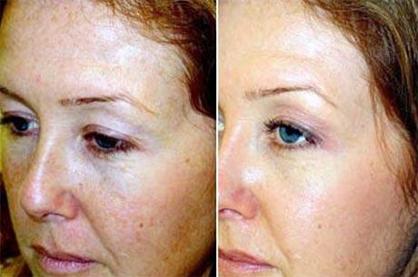 Химический пилинг лица До и После в косметологии Медитэкс в Петропавловске-Камчатском