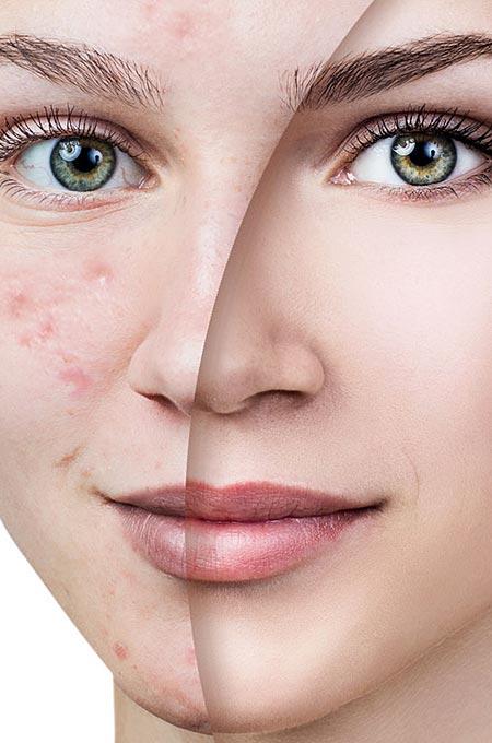Лазерное лечение постакне в косметологии Медитэкс в Петропавловске-Камчатском