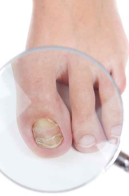 Лечение грибка ногтей в Косметологии Медитэес в Петропавловске-Камчатском
