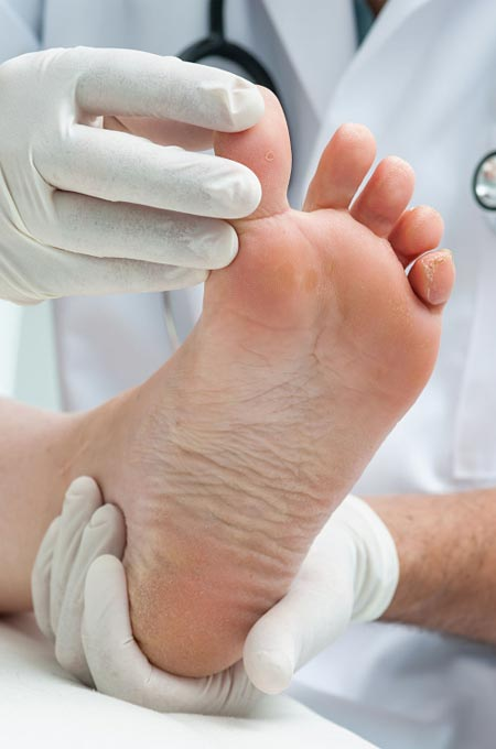 Диагностика и лечение микозов в косметологии Медитэкс на Камчатке