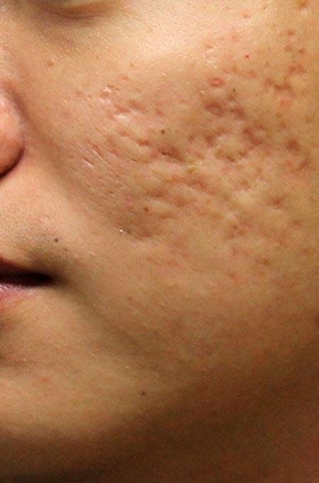Лечение рубцов и шрамов в Косметологии Медитэкс на Камчатке