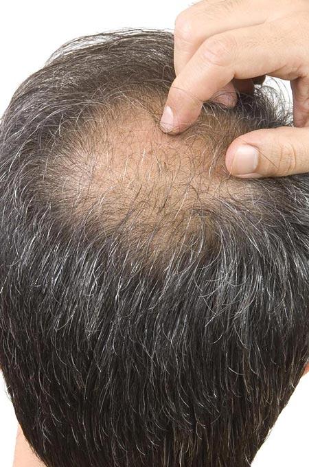 Обследование волос на аппарате Трихоскан на Камчатке в косметологии Медитэкс
