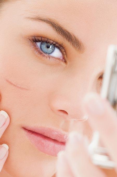Процедуру PRP-терапии рубца (Плазмолифтинг) в косметологии Медитэкс на Камчатке