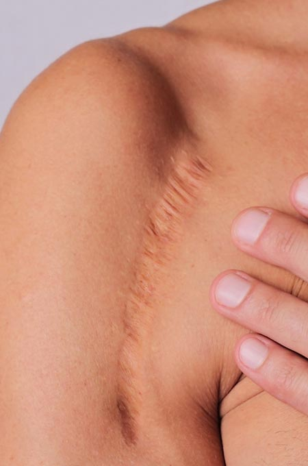Процедуру PRP-терапии рубца (Плазмолифтинг) в косметологии Медитэкс в Петропавловске-Камчатском