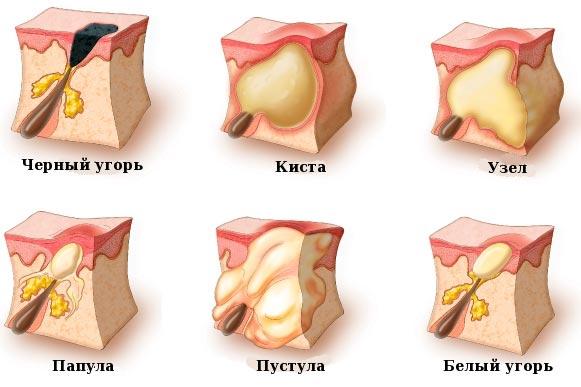 Виды АКНЕ. Диагностика и лечение АКНЕ в Петропавловске-Камчатском в косметологии Медитэкс